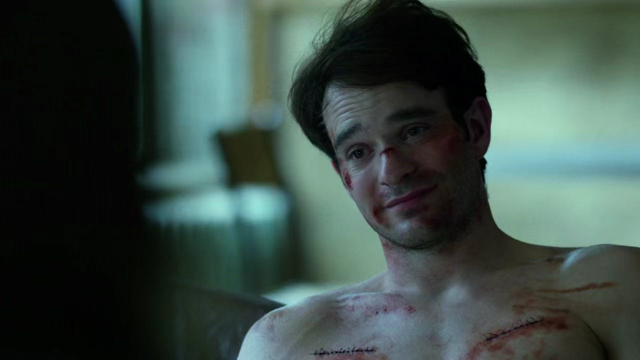 Matt-Murdock-Stitches-Smile.jpg